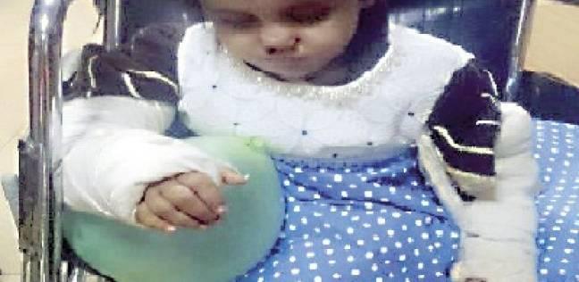استغاثة «فيس بوك» تنقذ طفلة من تعذيب زوجة الأب