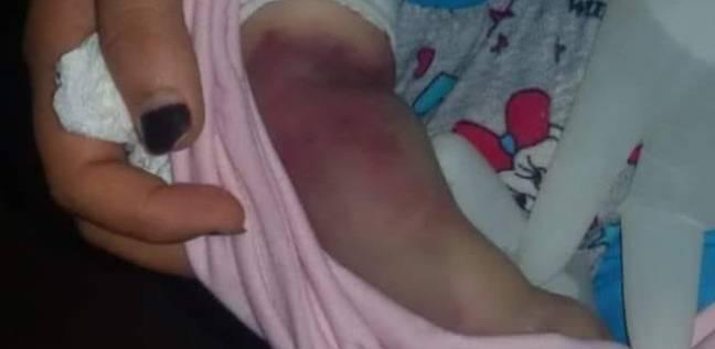 بتر ذراع طفلة لخطأ طبي في المنوفية.. واحتجاز مدير المستشفى