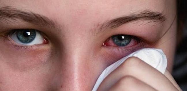 3 أعراض جديدة لفيروس كورونا: تصيب العين