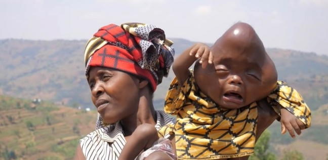 «باجينيزا» وابنها المريض