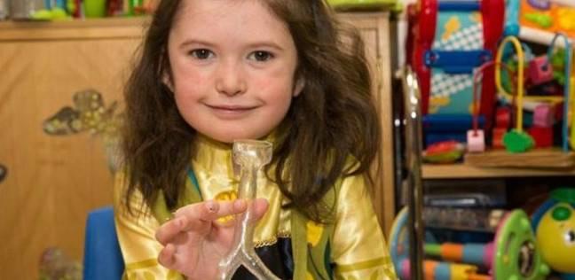 طابعة ثلاثية الأبعاد تسهل عملية جراحية لطفلة في بريطانيا