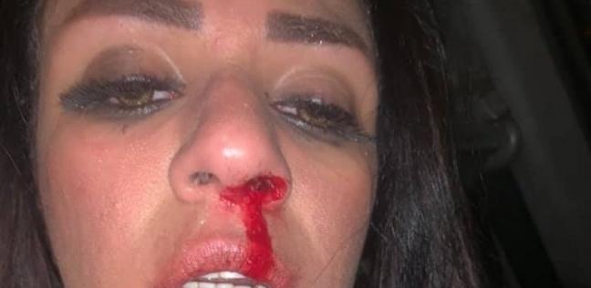 """شاهيناز بعد اعتداء زوجها عليها: """"ده عاطل.. وهجيب حقي أنا وأمي"""""""