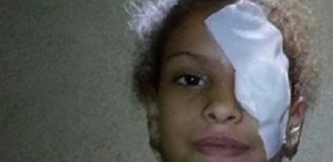"""استجابة لـ""""الوطن"""".. طبيب شهير يتكفل بإجراء عملية لعين """"سارة"""""""