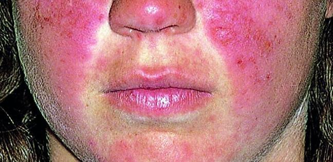 أعراض الذئبة الحمراء علي الوجه