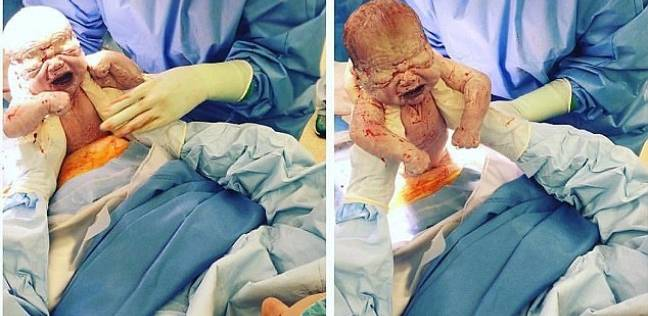 بالصور| سيدة أسترالية تخرج ابنها من الرحم بنفسها أثناء ولادتها القيصرية
