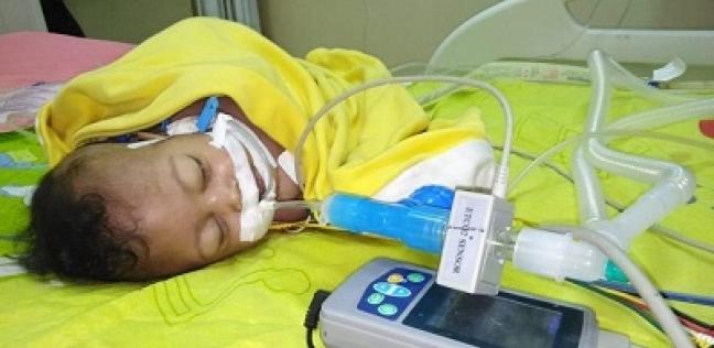 رحلة علاج 45 يوماً من «الصلب المشقوق» تنتهى بوفاة الطفل «ليل».. ووالده: «الإهمال قتل ابنى»