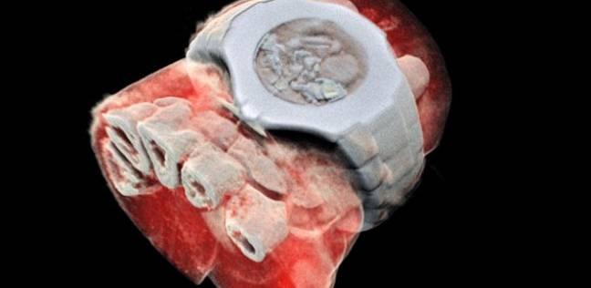 علماء نيوزلانديين يصممون أول جهاز أشعة سينية ثلاثية الأبعاد