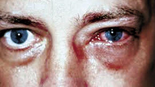 دراسة ألمانية تؤكد قدرة البروتينات الواقية على علاج إعتام عدسة العين