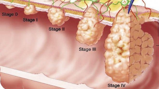 علماء بريطانيون يتعرفون على خطأين جينيين يسببان سرطان الأمعاء