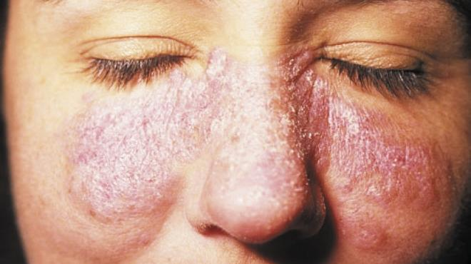 آلام المفاصل والطفح الجلدى.. أبرز أعراض «الذئبة الحمراء»
