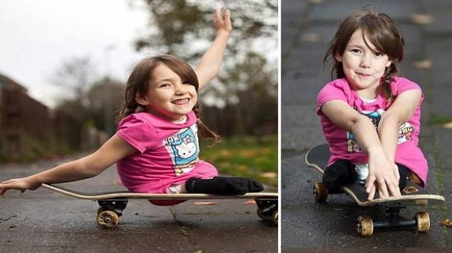 طفلة بريطانية مبتورة الساقين تحترف رياضة التزلج