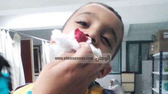 بالصور| مدير مستشفى المحلة ينقذ طفل بعد غياب طبيب الاستقبال