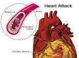 علاج الإكتئاب يمنع النوبات القلبية و السكتات الدماغية