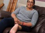 جراحة نادرة.. نقل قدم فتاة أمريكية مكان ركبتها
