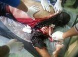 بتر اليد اليسرى لمجند ضمن مصابي انفجار مدرعة شرطة بالشرقية
